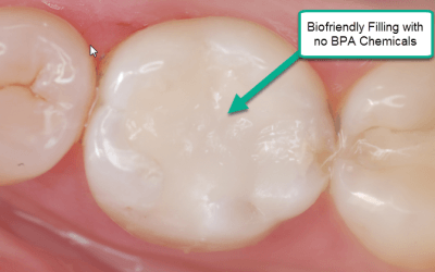 Bio-Friendly, Non Metal Fillings