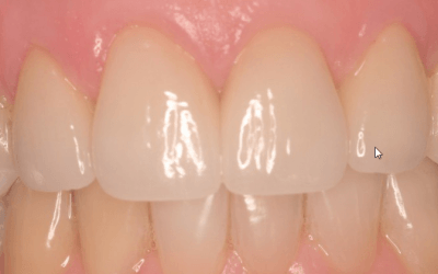 Why I Don't Offer One-Step Cerac Crowns