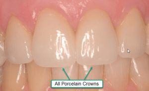 Porcelain Crown