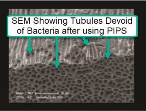 PIPS kills bacteria in dentinal tubules
