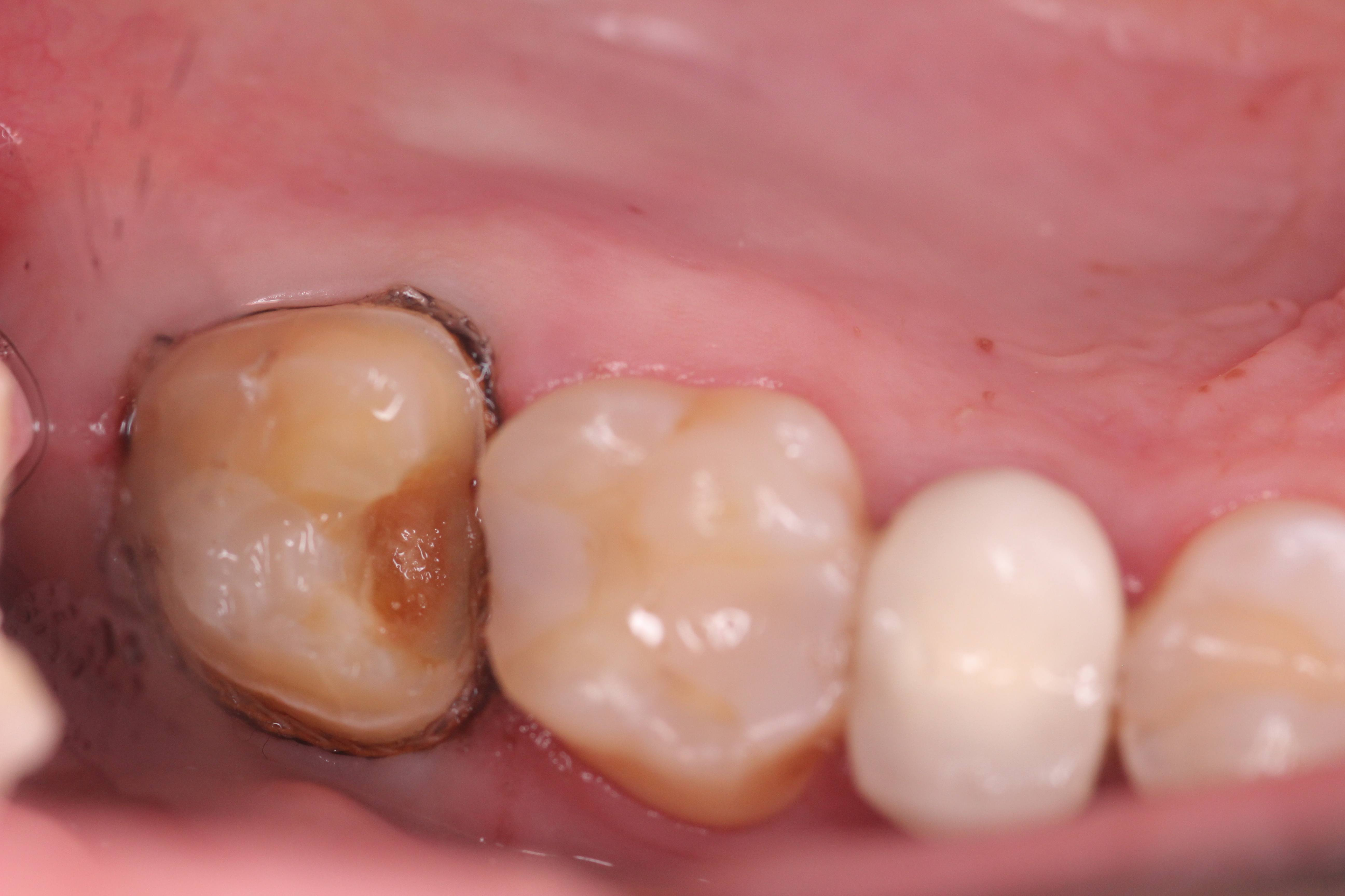 How I Treat Deep Cavities To Prevent Root Canal Infection A Case