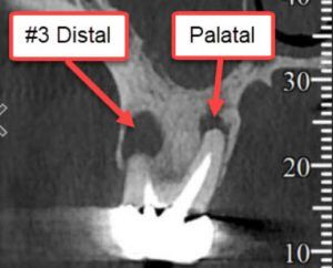 Infected root canal tooth