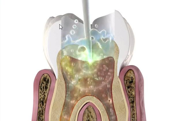 root canal done with laser