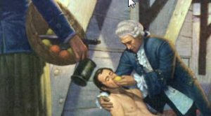 Sailor being treated for scurvy