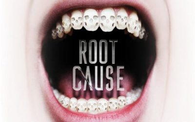 "Is The ""Root Cause"" Movie Right About Root Canals?"